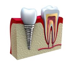 dental bangkok, dental cosmetic, dental clinic, dental crown, dental veneer, dentist bangkok, dental hospital, dental implants, invisalign bangkok, bangkok sukhumvit